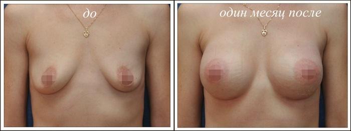 Операции по увеличению грудей в одессе